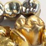 Zahngold verkaufen Zahngold-gelb und weiss