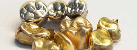 Zahngold verkaufen bei Aurum-Hamburg