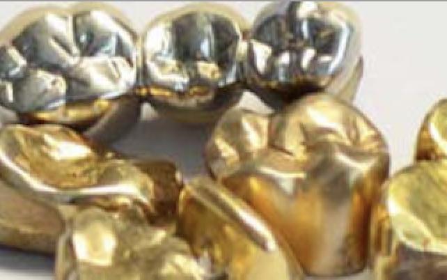 Zahngold Ankauf Aurum Edelmetalle